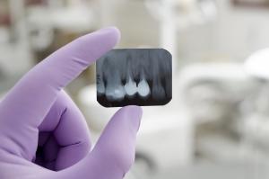Oralchirurgie Berlin - Röntgenbild