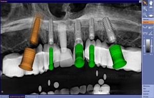 Einsatzmöglichkeiten von Implantaten